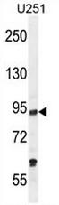 AP53187PU-N - PCAF / KAT2B