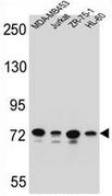 AP53210PU-N - PCDHB15