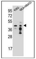 AP53226PU-N - PCYT1A