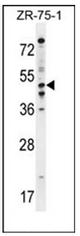 AP53239PU-N - PDE7B