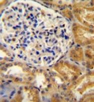 AP53251PU-N - PEAR1
