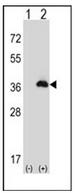 AP53262PU-N - Peroxin 16 / PEX16