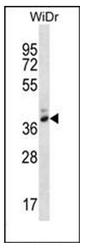 AP53267PU-N - Pepsin