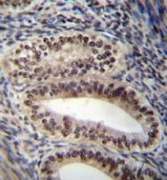AP53273PU-N - Progesterone receptor