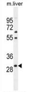 AP53288PU-N - PHOX2B