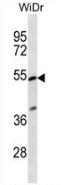 AP53301PU-N - PIGV