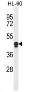 AP53327PU-N - PLA2G7