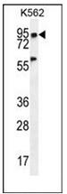 AP53347PU-N - PLEKHA4