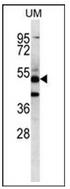 AP53367PU-N - PNLIPRP3