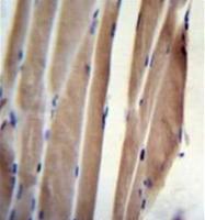 AP53387PU-N - POLR2J