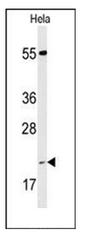 AP53410PU-N - Cyclophilin C