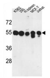 AP53413PU-N - Protein phosphatase 1H / PPM1H