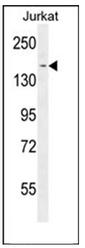 AP53426PU-N - PPRC1