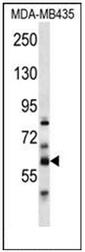 AP53496PU-N - PTDSS2