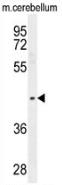 AP53508PU-N - PTOV1