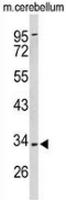 AP53526PU-N - Peroxin 2 / PEX2 / RNF72