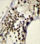 AP53556PU-N - RACGAP1