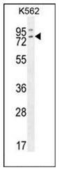 AP53590PU-N - RASGRP2