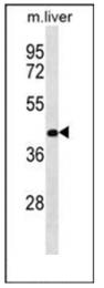 AP53592PU-N - RASSF10
