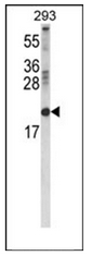AP53617PU-N - Retinol-binding protein 2 / RBP2