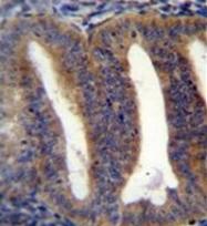AP53619PU-N - RBPMS2