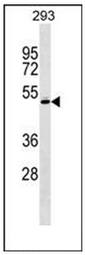 AP53621PU-N - RCBTB1