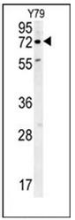 AP53640PU-N - RFT1