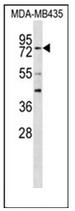 AP53644PU-N - RFX3