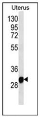 AP53684PU-N - RNF148