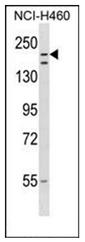 AP53685PU-N - RNF160 / ZNF294
