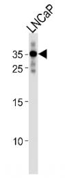 AP53693PU-N - RNF4