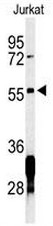 AP53695PU-N - RNF8