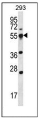 AP53941PU-N - SMAP2