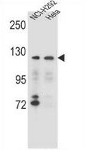 AP53971PU-N - Sorting nexin-13 (SNX13)