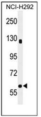 AP53994PU-N - SPATA5L1