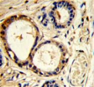 AP54041PU-N - Cortactin