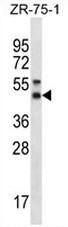 AP54092PU-N - Syntaxin 5 / STX5