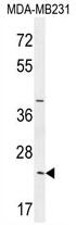 AP54118PU-N - SYCE2