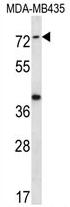 AP54129PU-N - SYTL1