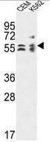 AP54178PU-N - TBCE