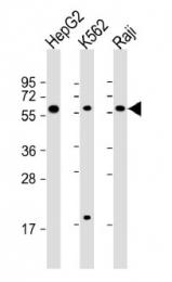 AP54230PU-N - TGFB1