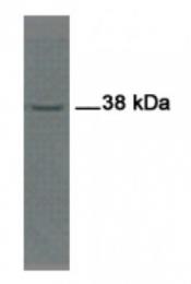 AP54851SU-N - Ymer