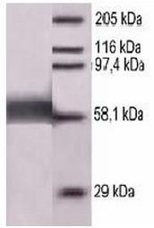 AP55070SU-N - Measles virus