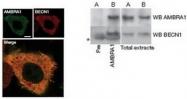 AP55295SU-N - Spichthyin / SPICT