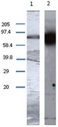 AP55334PU-N - Transglutaminase-1 (TGM1)