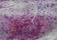 AP55335SU-N - Transglutaminase-2 (TGM2)