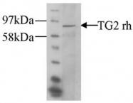 AP55336PU-N - Transglutaminase-2 (TGM2)