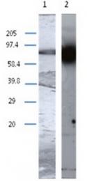 AP55343PU-N - Transglutaminase-1 (TGM1)