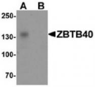 AP55412CP-N - ZBTB40