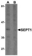 AP55413CP-N - Septin-1 (SEPT1)